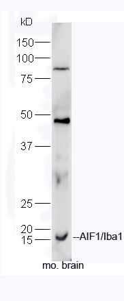Formalin-fixed and paraffin embedded rat brain tissue labeled with Anti-AIF1 Polyclonal Antibody, unonjugated (bs-1363R) at 1:200 for 40 minutes at 37°C followed by labeling Goat Anti-Rabbit IgG, Cy3 conjugated(bs-0295G-Cy3) 1:200, 40 minutes at 37°C