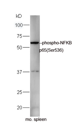 Mouse spleen lysates probed with Rabbit Anti-NFKB p65(Ser536) Polyclonal Antibody, Unconjugated (bs-0982R) at 1:300 overnight at 4\u02daC. Followed by a conjugated secondary antibody (bs-0295G-HRP) at 1:5000 for 90 min at 37\u02daC.
