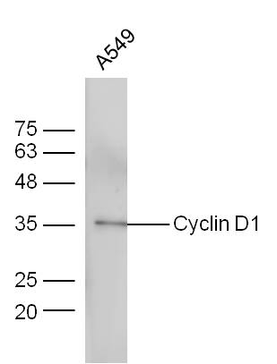 A549 cells probed with Anti-Cyclin D1 Polyclonal Antibody (bs-0623R) at 1:300 overnight in 4\u02daC. Followed by conjugation to the secondary antibody (bs-0295G-HRP) at 1:5000 90min in 37\u02daC.