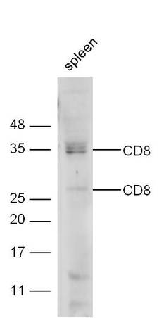 Mouse spleen lysate probed with Anti-CD8 Polyclonal Antibody (bs-0648R) at 1:300 overnight in 4˚C. Followed by conjugation to the secondary antibody (bs-0295G-HRP) at 1:5000 90min in 37˚C.
