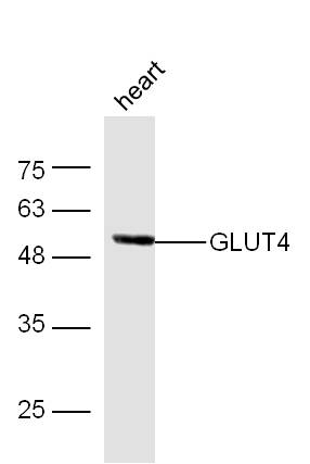 Mouse heart lysates probed with Anti-GLUT4 Polyclonal Antibody (bs-0384R) at 1:300 overnight in 4\u02daC. Followed by conjugation to the secondary antibody (bs-0295G-HRP) at 1:5000 90min in 37\u02daC.