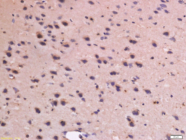 Formalin-fixed and paraffin embedded rat brain labeled with Anti-CD31 Polyclonal Antibody, Unconjugated (bs-0468R) at 1:300 followed by conjugation to the secondary antibody and DAB staining.