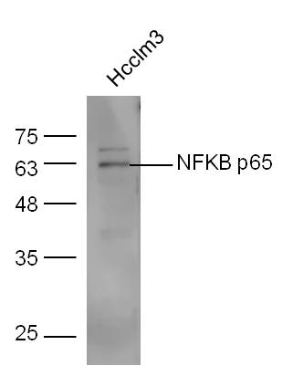 HCCLM3 lysates probed with Anti-NFKB p65 Polyclonal Antibody, Unconjugated (bs-0465R) at 1:300 overnight at 4\u02daC. Followed by conjugation to secondary antibody (bs-0295G-HRP) at 1:5000 for 90 min at 37\u02daC.
