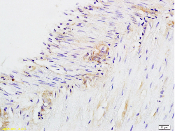 Formalin-fixed and paraffin embedded rat colitis labeled with Anti-CD28 Polyclonal Antibody, Unconjugated (bs-1297R) at 1:200 followed by conjugation to the secondary antibody and DAB staining.