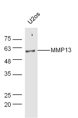 Human U2os lysates probed with Rabbit Anti-MMP13 Polyclonal Antibody, Unconjugated (bs-0575R) at 1:300 overnight at 4\u02daC. Followed by a conjugated secondary antibody (bs-0295G-HRP) at 1:5000 for 90 min at 37\u02daC.
