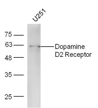 U251 lysates probed with Rabbit Anti-DRD2 Polyclonal Antibody, Unconjugated (bs-1008R) at 1:300 overnight at 4˚C. Followed by conjugation to secondary antibody (bs-0295G-HRP) at 1:5000 for 90 min at 37˚C.